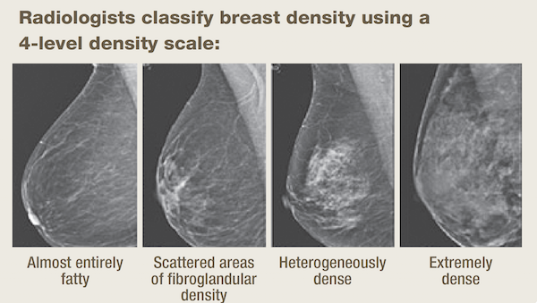 Breast density scale