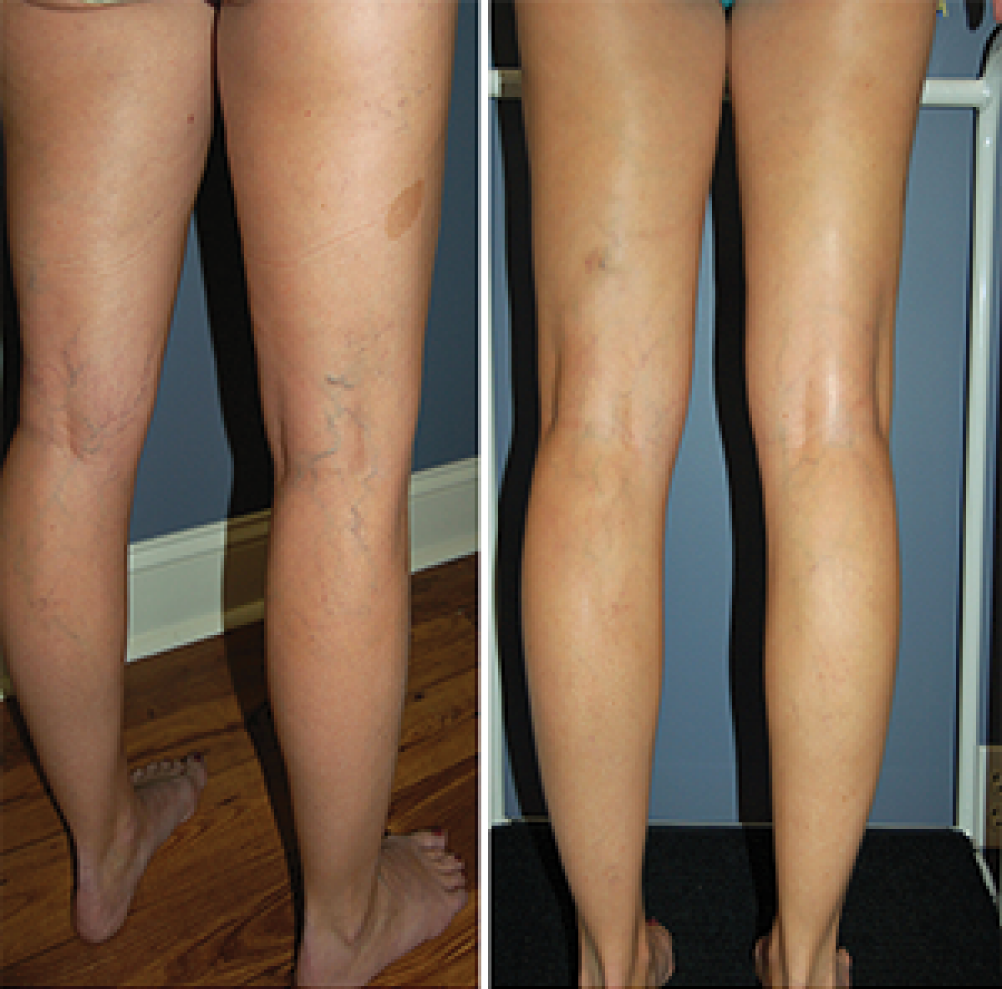 Sclerotherapy: Before and After (1)
