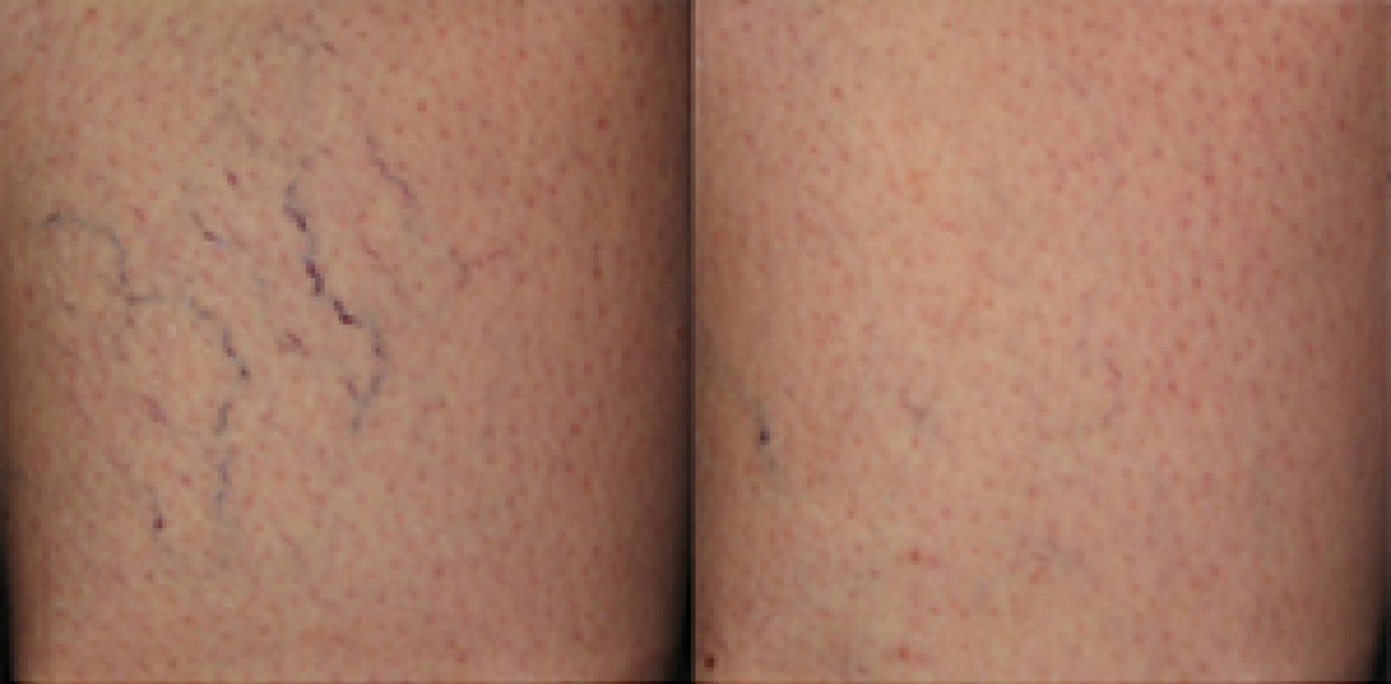 Sclerotherapy: Before and After (2)