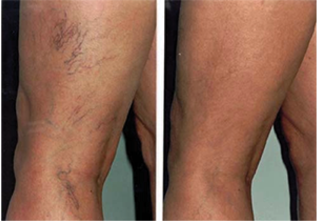 Sclerotherapy: Before and After (3)